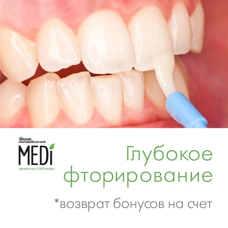 Для чего нужно фторирование зубов